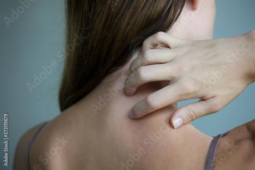 Obraz na plátně Close up view of woman scratching her neck.