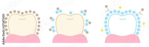 Photo 歯 ポリリン酸 ホワイトニング ビフォアアフター