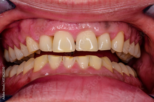 results of massive teeth grinding Canvas Print