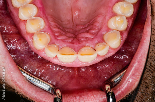 Photo results of massive teeth grinding
