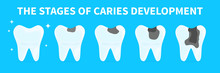 Cartoon Teeth Shows Stages Of Caries Development. Concept Of Gingivitis, Pulpitis And Periodontitis. Infographic Flat Vector Illustration Of Unhealthy Tooth