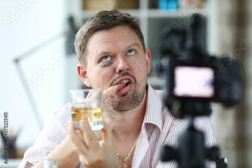 Drunken blogger with black eye film video Tapéta, Fotótapéta