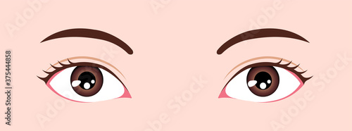 Eye shapes ( eyeball size and position ) vector illustration Wallpaper Mural