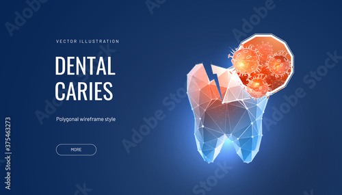 Photo Tooth decay futuristic polygonal vector illustration on blue background