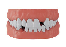 Jaw With Missing Front Upper Tooth Deuce And Lower Tooth Three On White Background, 3d Render