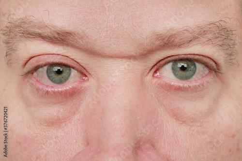 Obraz na plátně mirada de hombre con ojos azueles y alergia y bolsas en los ojos