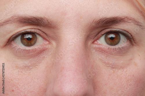 Photo mirada de mujer adulta con ojos marrones sin maquillaje y pequeñas ojeras y ceja