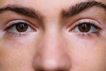 Closeup Of A Woman With Vitiligo