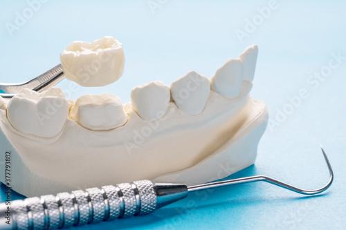 Photo Closeup / Prosthodontics or Prosthetic / Single teeth crown and bridge equipment model express fix restoration