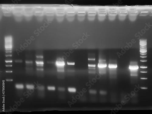 Fotografie, Obraz result of agarose gel electrophoresis of PCR products