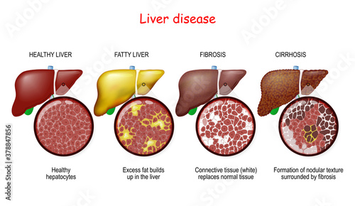 Fototapeta Liver diseases. Stages of liver damage obraz