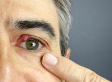 Close-up Of A Man Eye Stye. Ophthalmic Hordeolum Disease, Chalazion