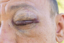 The Bruise And Hematoma Under The Eye Are Close-up. Damaged By A Blow Of A Fist To An Eye. The Consequences Of A Street Fight.