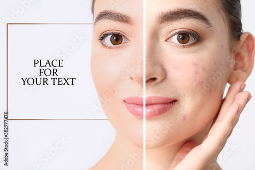Young woman before and after acne treatment on light background with space for text