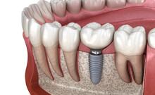 Molar Tooth Crown Installation...