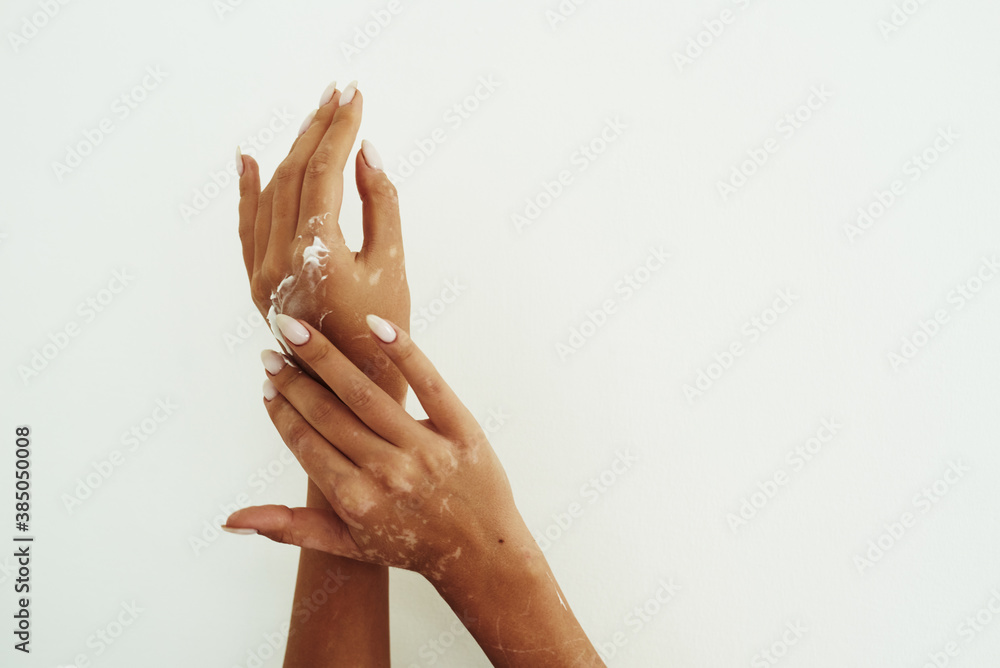 Fototapeta Young woman distributes hand cream on her hands. The concept of skin hydration, hand care and wrinkle prevention