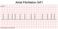 Electrocardiogram Show Atrial Fibrillation (AF) Pattern. Cardiac Fibrillation. Heart Beat. CPR. ECG. EKG. Vital Sign. Life Support. Defib. Emergency. Medical Healthcare Symbol.