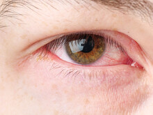 Red Eye Of An Infected Person. Conjunctivitis.