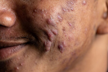 Backgrounds Of Lesions Skin Ca...