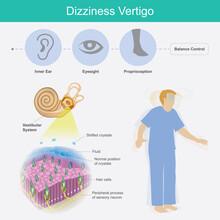 Dizziness Vertigo. Illustration Explain Dizziness Vertigo By Cause Of Crystals Can Float Into The Wrong Part Of The Inner Ear Canal..