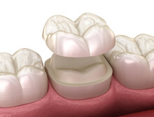 Onlay Ceramic Crown Fixation Over Molar Tooth. Medically Accurate 3D Illustration Of Human Teeth Treatment