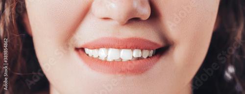 Fotografía Beautiful snow-white smile of woman