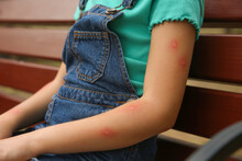 Girl With Insect Bites On Arm Outdoors, Closeup
