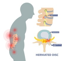 Herniated Disc Injury To The Cushioning And Connective Tissue Between Vertebrae Disk Bone Back Annulus Nucleus Bulged Older Cord Muscle Weakness Neck  Cauda Equina