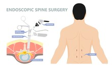 Endoscopic Spine Surgery Micro Facet Syndrome Bone Spurs Joint Leg Incisions Tubular Retractor  Canal Vertebrae Fractured  Foraminotomy Microforaminotomy Microlaminectomy Microlaminotomy Disorder