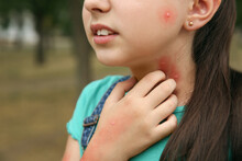 Girl Scratching Neck With Insect Bites In Park, Closeup