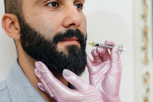 Cosmetic Procedure For Lip Augmentation And Wrinkle Removal For A Bearded Man. Cosmetology