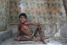 Portrait Of A Man Living With Disabilities On The Streets Of Delhi.