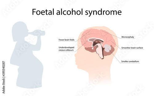 Fotografia Illustration showing the effects of foetal alcohol syndrome on the brain