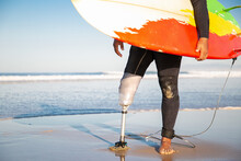 Unrecognizable Male Surfer Standing With Surfboard On Sea Beach. Cropped View Of Amputee With Artificial Leg Surfing During Summer Vacation. Physical Disability, Lifestyle And Extreme Sport Concept