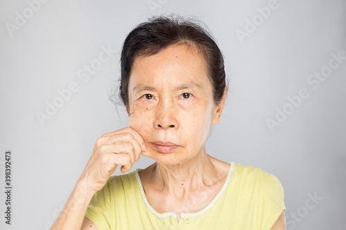 Obraz na plátne woman showing her flabby skin