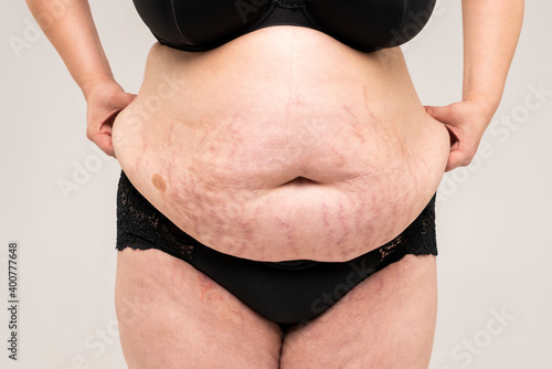 Photo Tummy tuck, flabby skin with stretch marks on a fat belly, plastic surgery conce