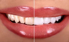 Perfect Close Up Before After  Sensual Beautiful  Woman Smile With Tongue . White Teeth Bleaching Ceramic Crowns Whitening Young Lady. Dental Zircon Implants Restoration Surgery