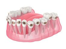 3d Render Of Teeth Alignment By Orthodontic Braces