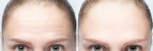 Forehead Wrinkles Before And After Injection, Treatment, Surgery. Womans Face Close Up