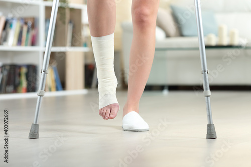 Tableau sur Toile Disabled woman walking with crutches and sprained ankle