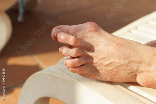 Fotografering Severe bunion, also known as hallux valgus on foot of female senior resting on s