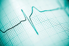 Electrocardiograph Closeup View