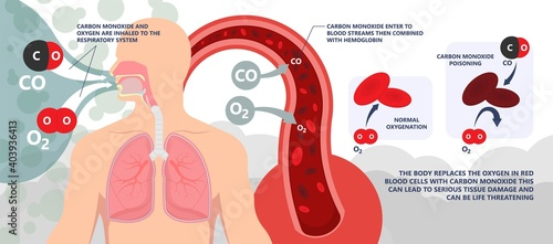CO level chest pain loss of consciousness gas death cherry red skin cyanide toxi Fotobehang