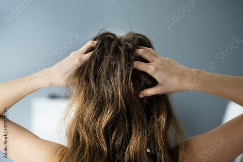 Vászonkép Itching Dry Head Scalp