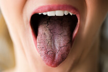 Woman Tongue With Bad Bacteria Candidiasis
