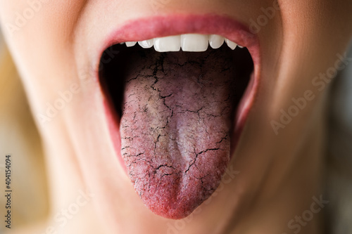 Obraz na plátně Woman Tongue With Bad Bacteria Candidiasis