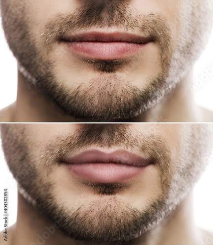 Obraz Lip augmentation. Male lips  before and after filler injection. - fototapety do salonu