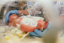 Three-day-old Newborn Baby In Intensive Care Unit In A Medical Incubator. Macro Photo Of Doctor's Hands And Legs Of A Child. Newborn Rescue Concept. The Work Of Resuscitation Doctors. Photo Indoors.