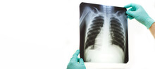 Doctor Hands Holding A Lungs Radiography X-ray Isolated On White Background. Banner