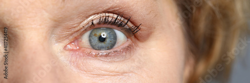 Obraz Blue eyes of an elderly woman. Healthy complexion and aging skin - fototapety do salonu